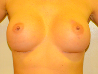 Case 23: Muscle splitting biplane breast augmentation, Mentor® anatomical implants 330 cc