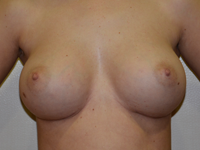 Case 26: Muscle splitting biplane breast augmentation, Mentor® anatomical implants 380 cc