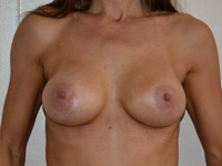 Case 33: Muscle splitting biplane breast augmentation, Mentor® anatomical implants 380 cc