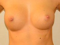 Case 38: Muscle splitting biplane breast augmentation, Mentor® anatomical implants 290 cc