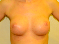 Case 39: Muscle splitting biplane breast augmentation, Mentor® anatomical implants 225 cc
