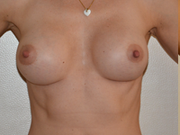 Caz 44: Muscle splitting biplane breast augmentation, Mentor® anatomical implants 330 cc