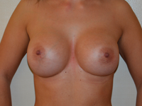 Case 45: Muscle splitting biplane breast augmentation, Mentor® anatomical implants 380 cc