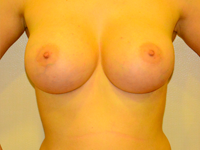 Case 50: Subfascial breast augmentation, Mentor® anatomical implants 430 cc