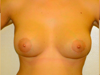Case 54: Muscle splitting biplane breast augmentation, Mentor® anatomical implants 430 cc