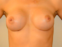 Case 57: Muscle splitting biplane breast augmentation, Mentor® anatomical implants 330 cc