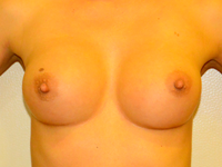 Case 58: Muscle splitting biplane breast augmentation, Mentor® anatomical implants 300 cc