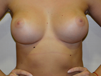 Case 6: Muscle splitting biplane breast augmentation, Mentor® anatomical implants 330 cc