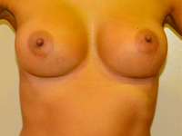 Case 65: Muscle splitting biplane breast augmentation, Mentor® anatomical implants 380 cc