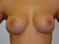 Case 70: Muscle splitting biplane breast augmentation, Mentor® anatomical implants 330 cc