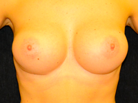 Case 72: Muscle splitting biplane breast augmentation, Mentor® anatomical implants 380 cc