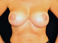 Caz 1 - Mamopexie cu augmentare mamara, implanturi rotunde Mentor® 300 cm³
