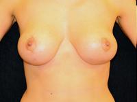 Caz 12: Mamopexie cu augmentare mamara, implanturi rotunde Mentor® 185 cm³