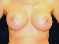 Caz 102: Augmentare mamara subfasciala, implanturi anatomice Mentor® 430 cm³ si 440 cm³