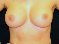 Caz 103: Augmentare mamara (tehnica muscle splitting biplane) si mamopexie interna, implanturi anatomice Mentor® 430 cm³