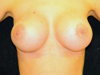 Caz 105: Augmentare mamara (tehnica muscle splitting biplane) si mamopexie interna, implanturi anatomice Mentor® 380 cm³