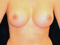Caz 110: Augmentare mamara (tehnica muscle splitting biplane), implanturi rotunde Mentor® 215 cm³