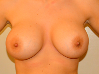 Caz 77: Augmentare mamara (tehnica muscle splitting biplane) si mamopexie interna, implanturi anatomice Mentor® 390 cm³