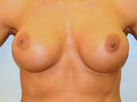 Caz 78: Augmentare mamara (tehnica muscle splitting biplane) si mamopexie interna, implanturi anatomice Mentor® 390 cm³