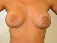 Caz 79: Augmentare mamara (tehnica muscle splitting biplane) si mamopexie interna, implanturi anatomice Mentor® 380 cm³