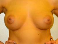 Caz 81: Augmentare mamara (tehnica muscle splitting biplane) si mamopexie interna, implanturi anatomice Mentor® 380 cm³