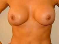 Caz 82: Augmentare mamara (tehnica muscle splitting biplane) si mamopexie interna, implanturi anatomice Mentor® 390 cm³
