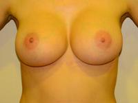 Caz 84: Augmentare mamara (tehnica muscle splitting biplane) si mamopexie interna, implanturi anatomice Mentor® 380 cm³