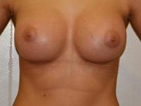 Caz 88: Augmentare mamara (tehnica muscle splitting biplane) si mamopexie interna, implanturi anatomice Mentor® 330 cm³