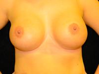 Caz 89: Augmentare mamara (tehnica muscle splitting biplane) si mamopexie interna, implanturi anatomice Mentor® 485 cm³