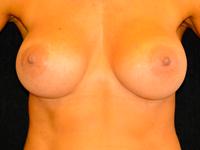 Caz 90: Augmentare mamara (tehnica muscle splitting biplane) si mamopexie interna, implanturi anatomice Mentor® 380 cm³