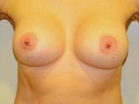 Caz 92: Augmentare mamara (tehnica muscle splitting biplane) si mamopexie interna, implanturi anatomice Mentor® 330 cm³