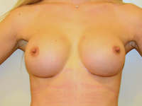 Caz 95: Preoperator : Augmentare mamara submusculara, implanturi anatomice Mentor® 225 cm³ / Postoperator : Augmentare mamara (tehnica muscle splitting biplane), implanturi anatomice Mentor® 380 cm³
