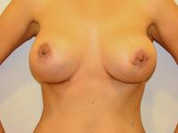 Caz 97: Preoperator: Augmentare mamara submusculara, implanturi rotunde Mentor® 250 & 300 cm³ / Postoperator : Augmentare mamara (tehnica muscle splitting biplane), implanturi anatomice Mentor® 380 & 440 cm³