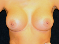 Case 100: Subfascial breast augmentation, Mentor® anatomical implants 430 cc