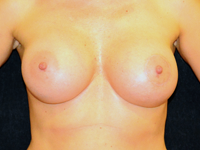 Case 102: Subfascial breast augmentation, Mentor® anatomical implants 430 cc and 440 cc