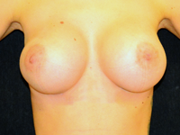 Case 105: Muscle splitting biplane breast augmentation with internal mastopexy, Mentor® anatomical implants 380 cc