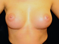 Case 106: Subfascial breast augmentation, Mentor® anatomical implants 330 cc
