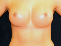 Case 107: Subfascial breast augmentation, Mentor® anatomical implants 290 cc