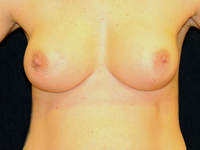 Case 109: Muscle splitting biplane breast augmentation, Mentor® round implants 350 cc at 8 years postoperative (after twin pregnancy, 20 kilos weight gain / loss and one month breastfeeding)