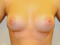 Case 73: Muscle splitting biplane breast augmentation, Mentor® anatomical implants 290 cc