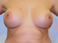Case 75: Muscle splitting biplane breast augmentation with internal mastopexy, Mentor® anatomical implants 330 cc