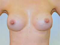 Case 76: Muscle splitting biplane breast augmentation, Mentor® anatomical implants 330 cc