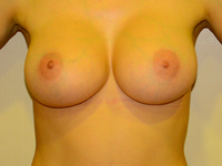 Case 84: Muscle splitting biplane breast augmentation with internal mastopexy, Mentor® anatomical implants 380 cc