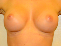 Case 85: Muscle splitting biplane breast augmentation with internal mastopexy, Mentor® anatomical implants 300 cc