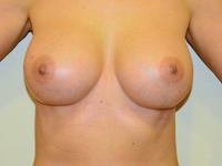 Case 91: Muscle splitting biplane breast augmentation with internal mastopexy, Mentor® anatomical implants 380 cc