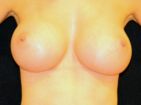 Case 98: Subfascial breast augmentation, Mentor® anatomical implants 330 cc and 380 cc