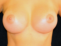Cazul 2: Augmentare mamara subfasciala, implanturi anatomice Mentor® 330 cm³