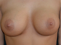 Case 121 - Muscle splitting biplane breast augmentation, Mentor® anatomical implants 345 cc