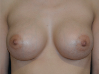 Case 122 - Subfascial breast augmentation, Mentor® anatomical implants 380 cc
