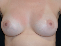 Case 113 - Subfascial breast augmentation, Mentor® anatomical implants 380 cc